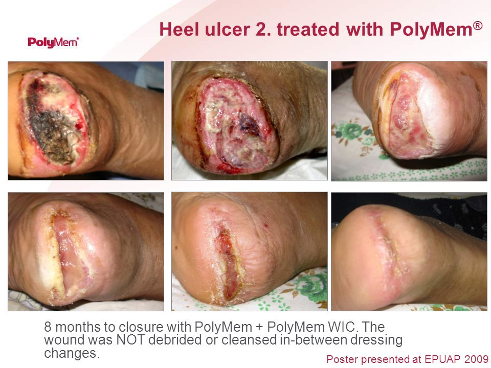 Heel ulcer 2. treated with PolyMem ® 8 months to closure with PolyMem + PolyMem WIC. The wound was NOT debrided or cleansed in-between dressing change