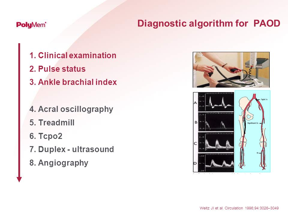 Diagnostic algorithm for PAOD 1. Clinical examination 2. Pulse status 3. Ankle brachial index 4. Acral oscillography 5. Treadmill 6. Tcpo2 7. Duplex -