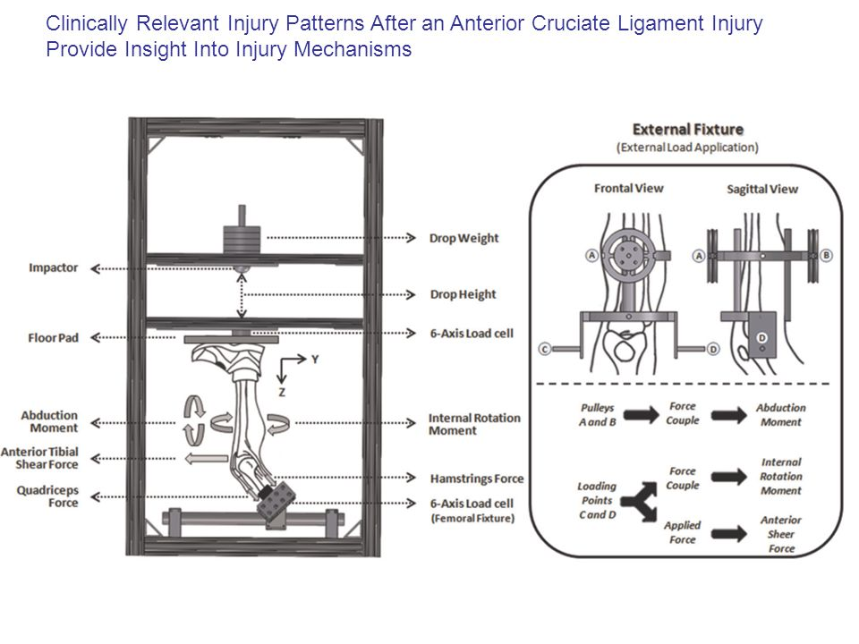 Clinically Relevant Injury Patterns After an Anterior Cruciate Ligament Injury Provide Insight Into Injury Mechanisms