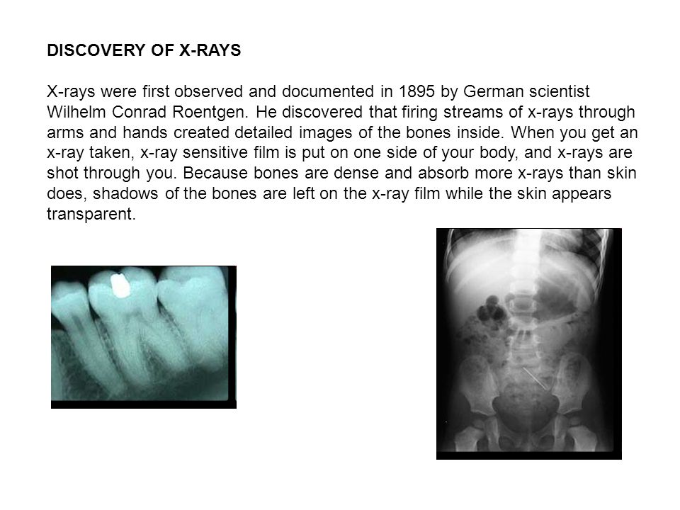 DISCOVERY OF X-RAYS X-rays were first observed and documented in 1895 by German scientist Wilhelm Conrad Roentgen. He discovered that firing streams o