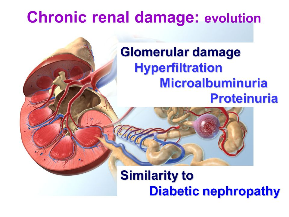 Chronic renal damage: evolution Glomerular damage Hyperfiltration Hyperfiltration Microalbuminuria Microalbuminuria Proteinuria Proteinuria Similarity