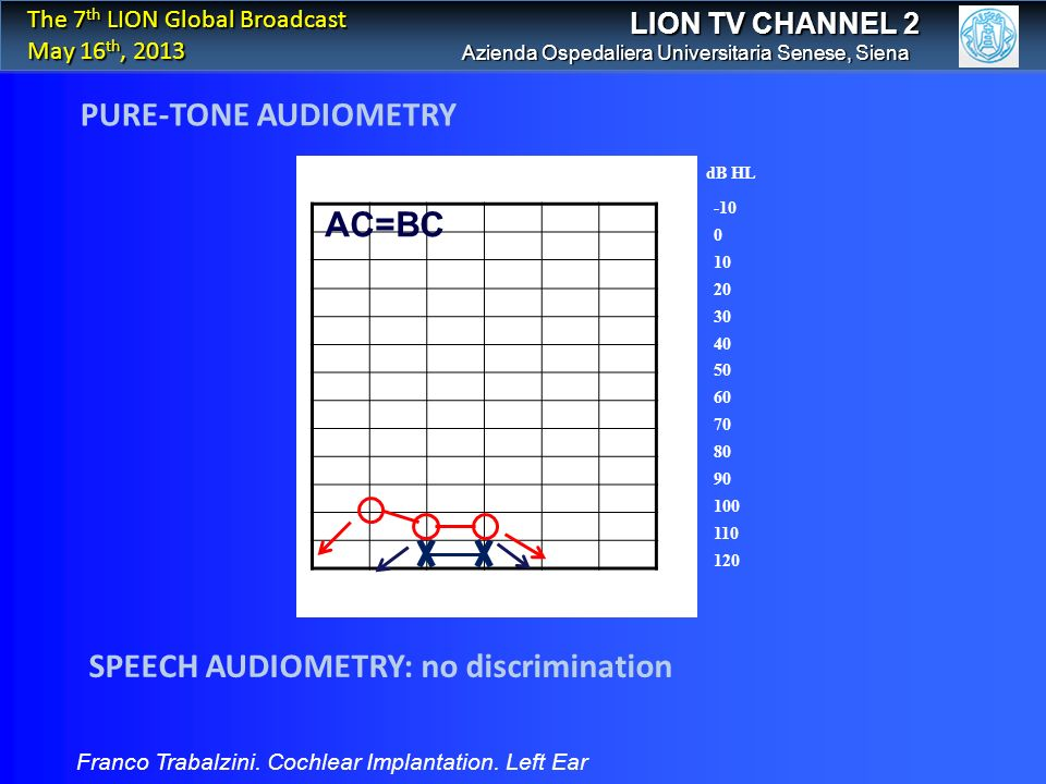 PURE-TONE AUDIOMETRY LION TV CHANNEL 2 Franco Trabalzini. Cochlear Implantation. Left Ear Azienda Ospedaliera Universitaria Senese, Siena The 7 th LIO