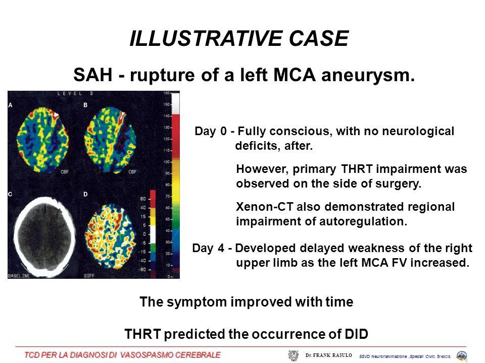 ILLUSTRATIVE CASE SAH - rupture of a left MCA aneurysm.