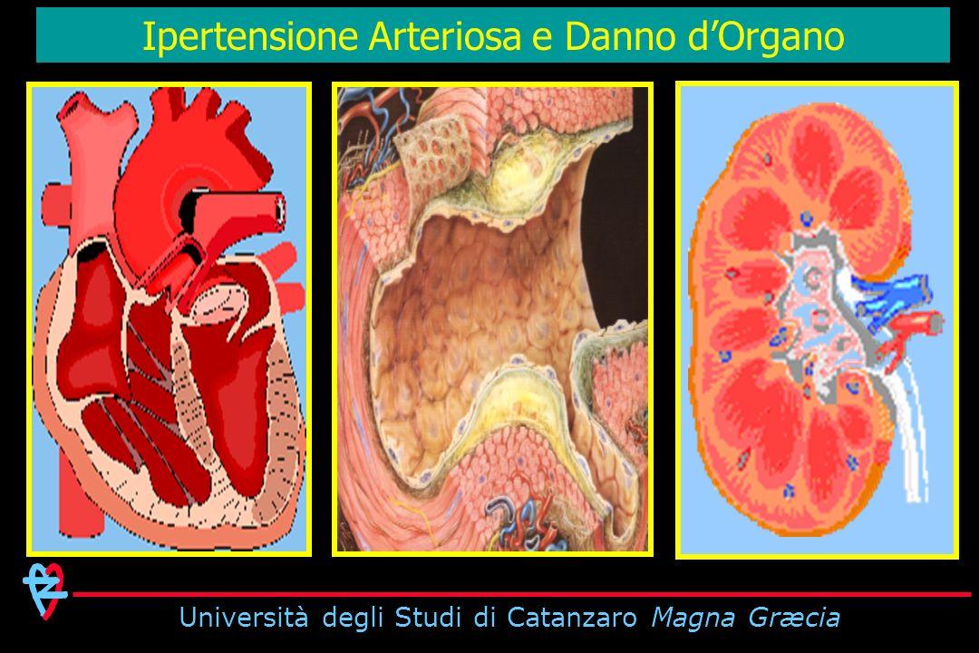 Università degli Studi di Catanzaro Magna Græcia Ipertensione Arteriosa e Danno dOrgano