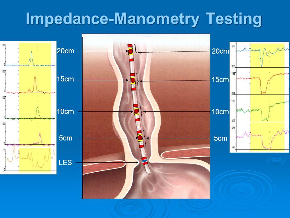 Impedance-Manometry Testing LES 5cm 10cm 15cm 20cm 5cm 10cm 15cm 20cm