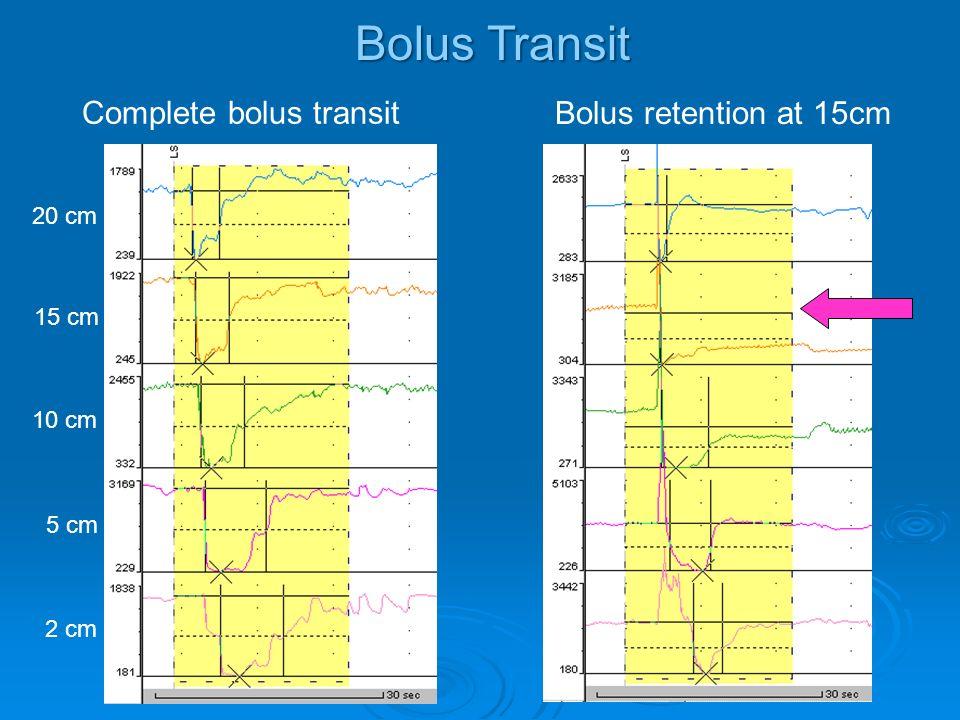 Bolus Transit Complete bolus transit Bolus retention at 15cm 20 cm 15 cm 10 cm 5 cm 2 cm