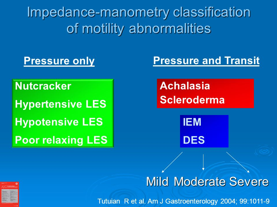 Impedance-manometry classification of motility abnormalities MildModerateSevere Achalasia Scleroderma Nutcracker Hypertensive LES Hypotensive LES Poor relaxing LES IEM DES Pressure only Pressure and Transit Tutuian R et al.