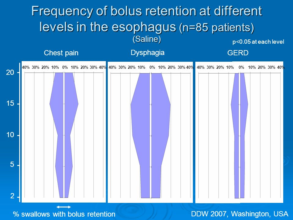 Frequency of bolus retention at different levels in the esophagus (n=85 patients) (Saline) 20 15 10 5 2 Chest pain Dysphagia GERD % swallows with bolus retention p<0.05 at each level 40%30%20%10%0%10%20%30%40% 30%20%10%0%10%20%30%40% 30%20%10%0%10%20%30%40% DDW 2007, Washington, USA