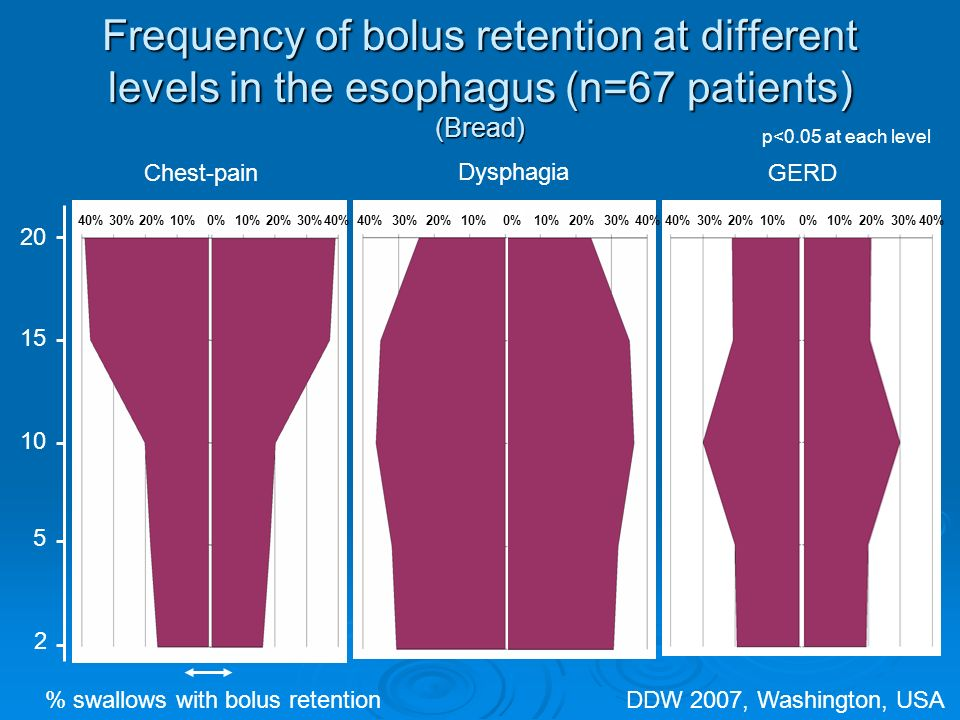 Frequency of bolus retention at different levels in the esophagus (n=67 patients) (Bread) 20 15 10 5 2 Chest-pain Dysphagia GERD % swallows with bolus retention p<0.05 at each level 40%30%20%10%0%10%20%30%40% 30%20%10%0%10%20%30%40% 30%20%10%0%10%20%30%40% DDW 2007, Washington, USA