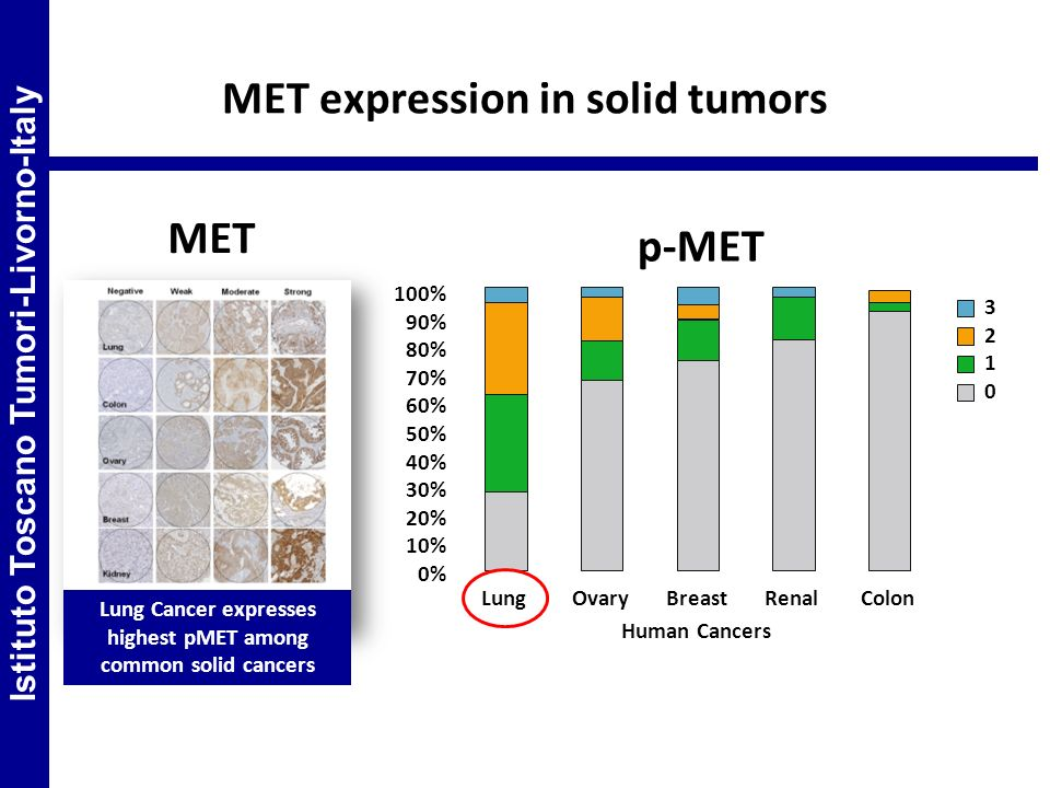MET expression in solid tumors MET p-MET Lung Cancer expresses highest pMET among common solid cancers 100% 90% 80% 70% 60% 50% 40% 30% 20% 10% 0% Lun