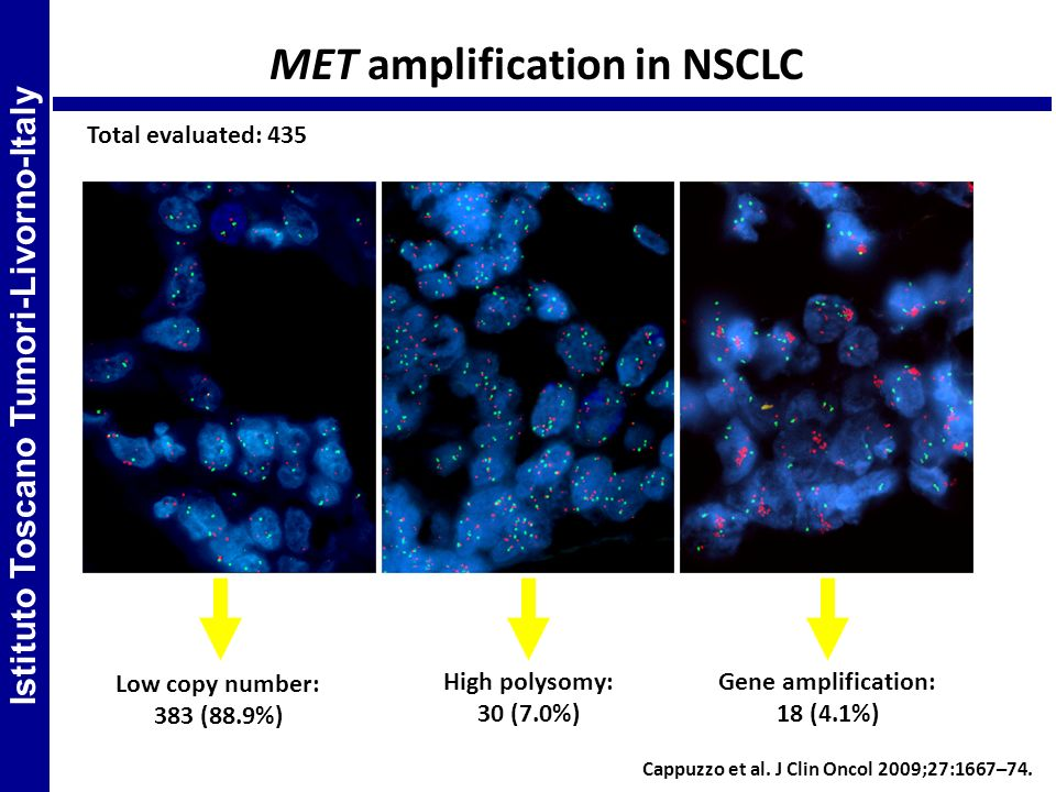 MET amplification in NSCLC Low copy number: 383 (88.9%) Gene amplification: 18 (4.1%) High polysomy: 30 (7.0%) Total evaluated: 435 Istituto Toscano T