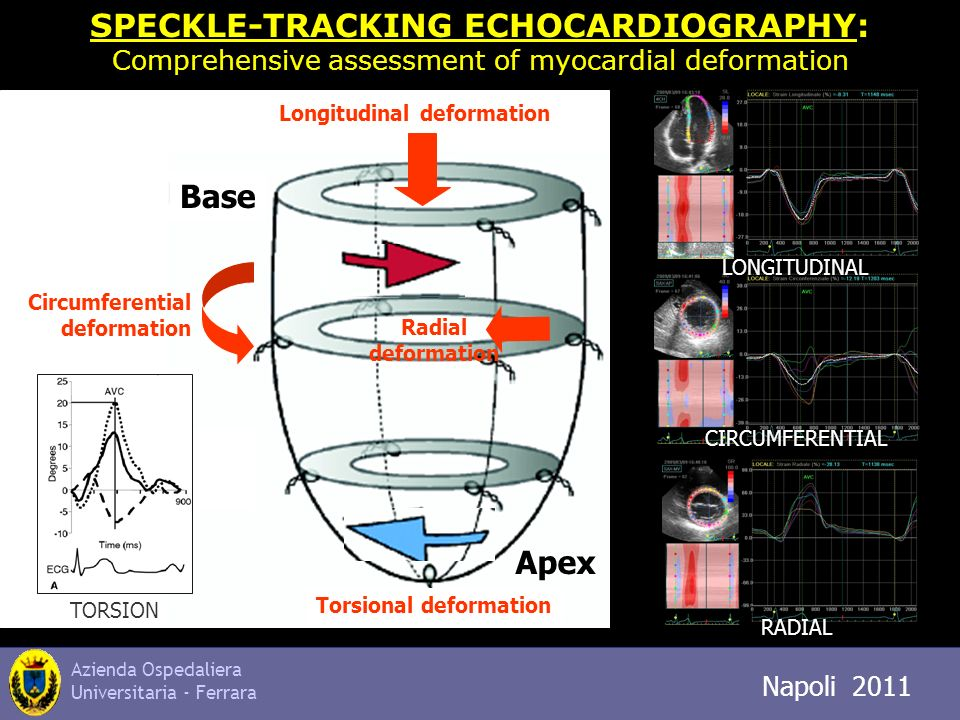 Azienda Ospedaliera Universitaria - Ferrara Napoli 2011 SPECKLE-TRACKING ECHOCARDIOGRAPHY: Comprehensive assessment of myocardial deformation Longitud