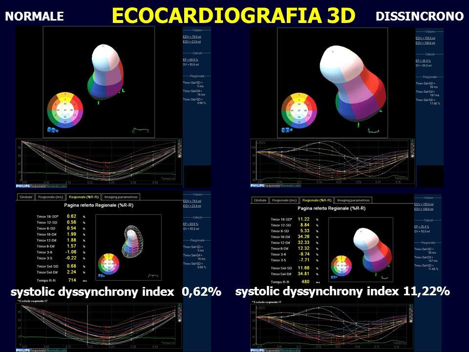 Azienda Ospedaliera Universitaria - Ferrara Napoli 2011 NORMALE ECOCARDIOGRAFIA 3D systolic dyssynchrony index 11,22% DISSINCRONO systolic dyssynchrony index 0,62%