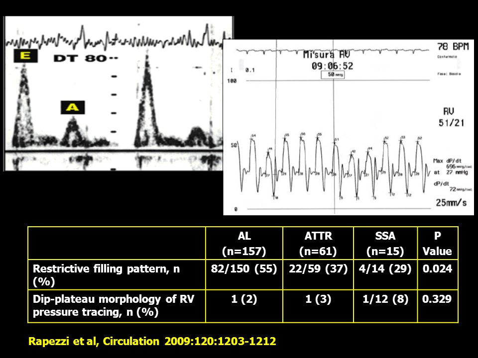AL (n=157) ATTR (n=61) SSA (n=15) P Value Restrictive filling pattern, n (%) 82/150 (55)22/59 (37)4/14 (29)0.024 Dip-plateau morphology of RV pressure tracing, n (%) 1 (2)1 (3)1/12 (8)0.329 Rapezzi et al, Circulation 2009:120:1203-1212