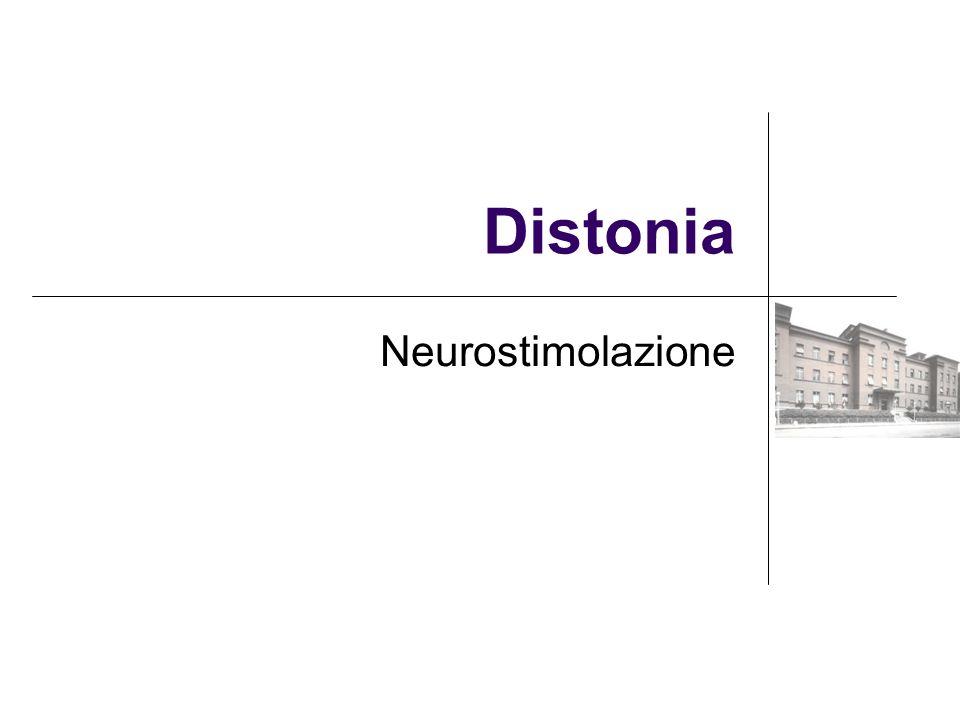 Distonia Neurostimolazione