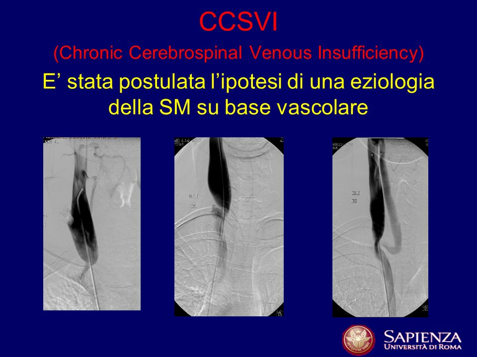 CCSVI (Chronic Cerebrospinal Venous Insufficiency) E stata postulata lipotesi di una eziologia della SM su base vascolare
