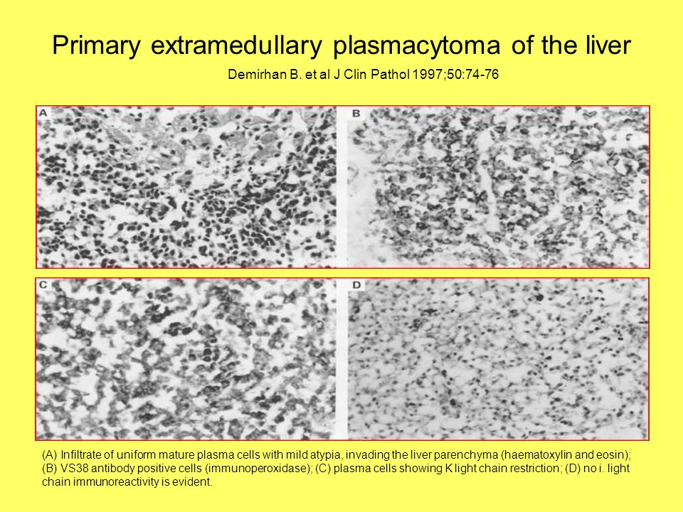 Primary extramedullary plasmacytoma of the liver (A) Infiltrate of uniform mature plasma cells with mild atypia, invading the liver parenchyma (haemat