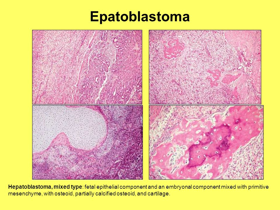 Epatoblastoma Hepatoblastoma, mixed type: fetal epithelial component and an embryonal component mixed with primitive mesenchyme, with osteoid, partial