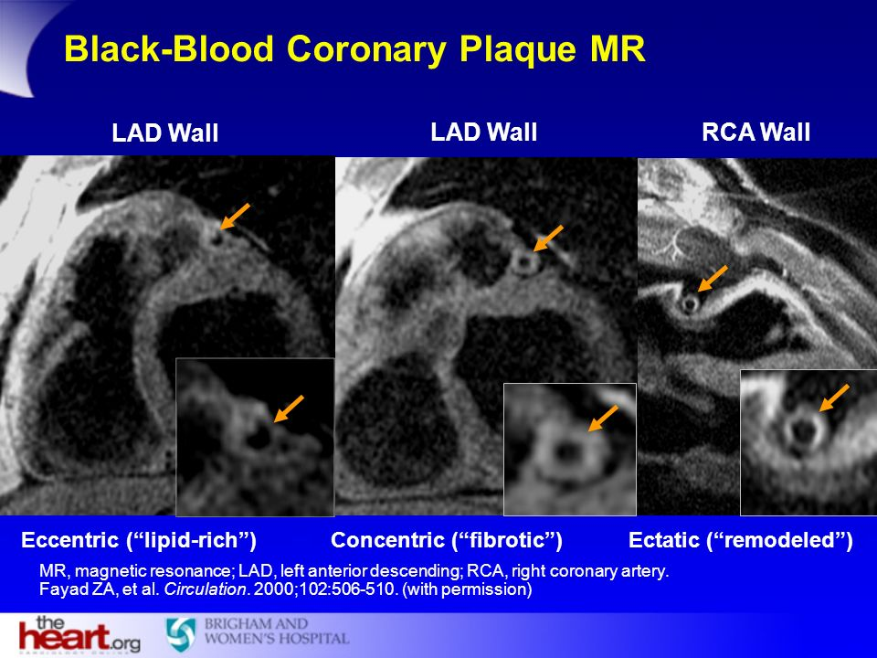 RCA WallLAD Wall Eccentric (lipid-rich)Concentric (fibrotic)Ectatic (remodeled) Black-Blood Coronary Plaque MR MR, magnetic resonance; LAD, left anter