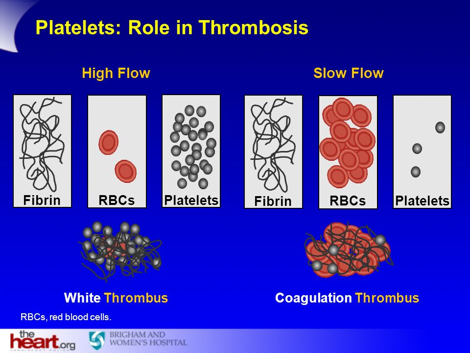 Fibrin PlateletsRBCs White Thrombus Fibrin PlateletsRBCs Coagulation Thrombus High Flow Slow Flow Platelets: Role in Thrombosis RBCs, red blood cells.