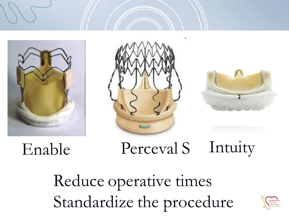 Enable Perceval S Intuity Reduce operative times Standardize the procedure
