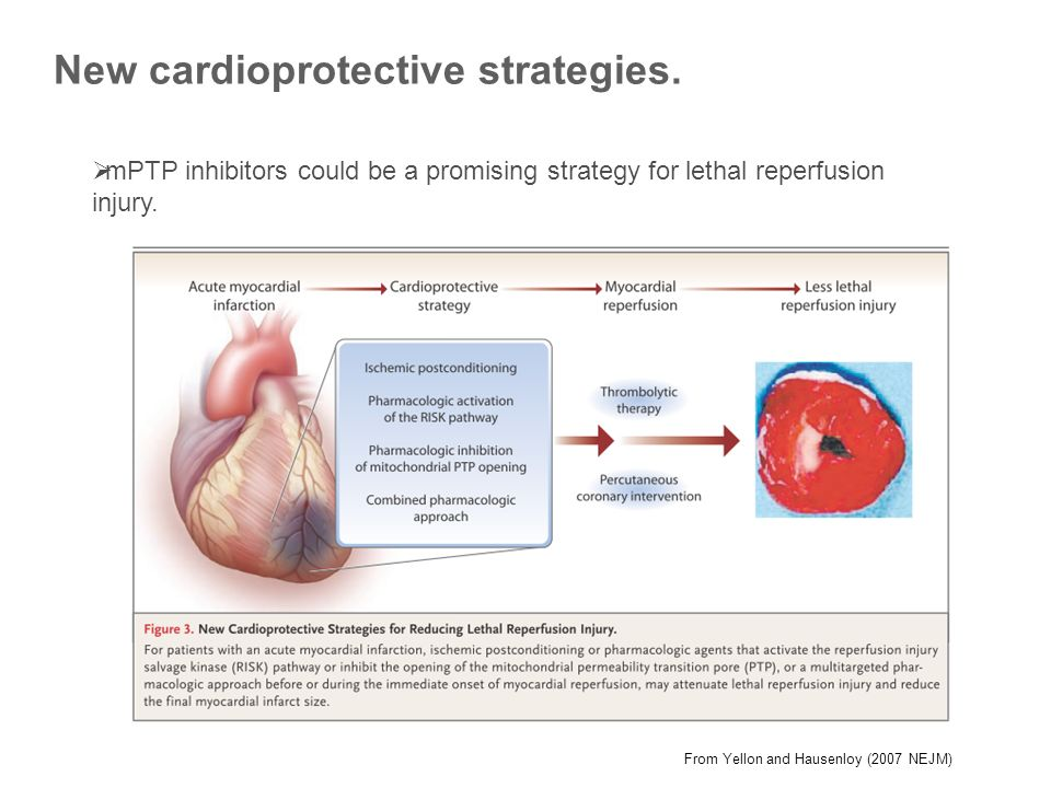 New cardioprotective strategies.