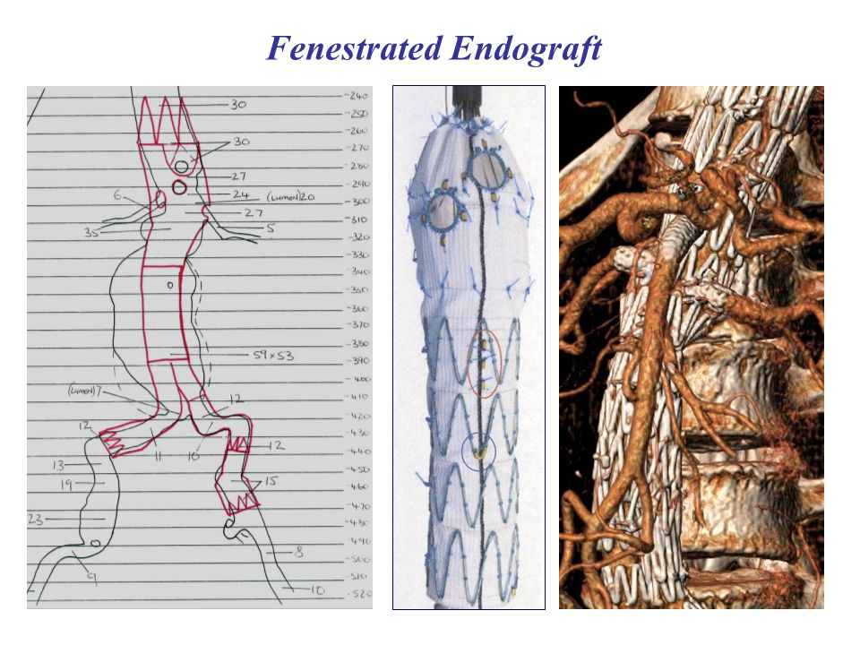 Fenestrated Endograft