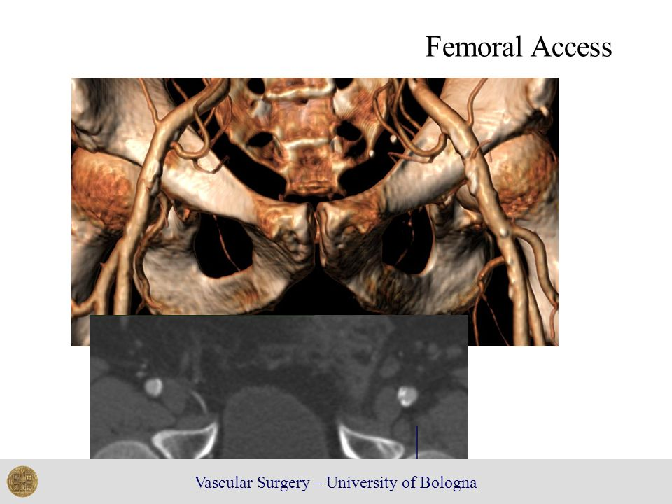 Femoral Access Vascular Surgery – University of Bologna