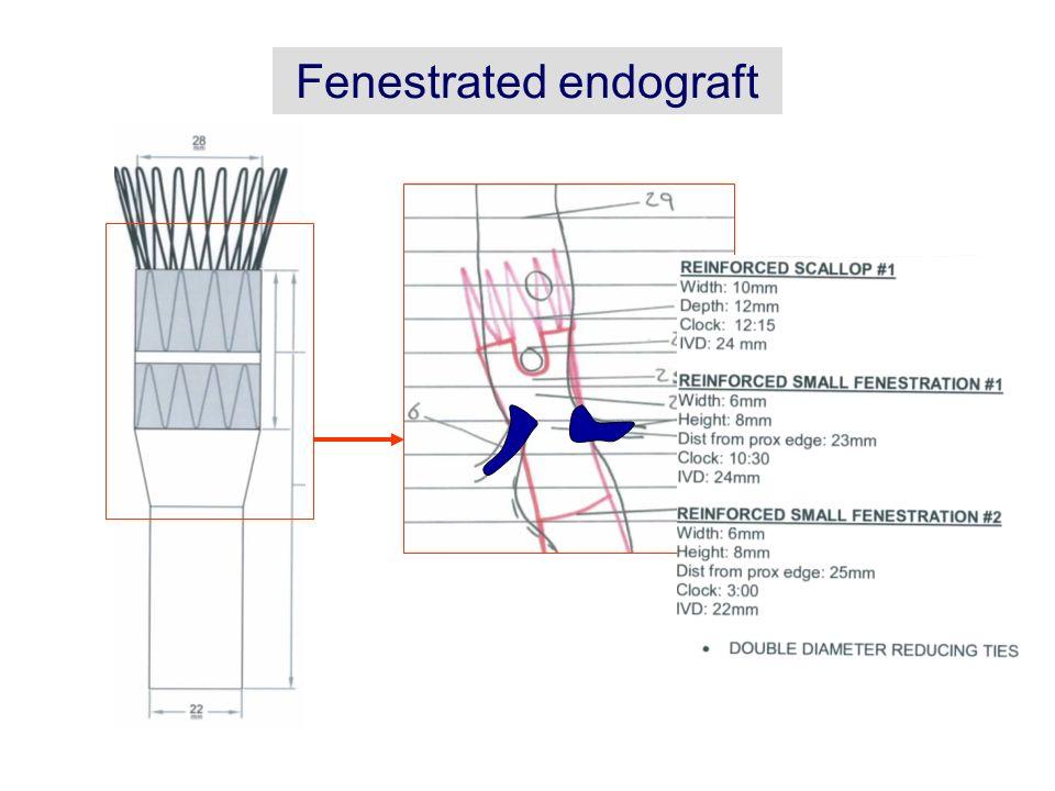 Bifurcated Endograt