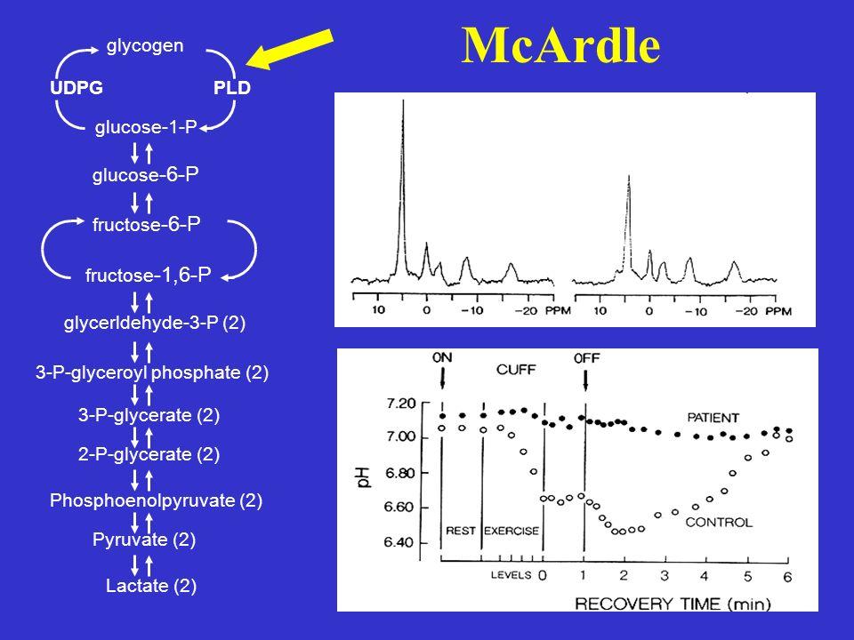McArdle UDPGPLD glycogen glucose-1-P glucose -6-P fructose -6-P fructose -1,6-P glycerldehyde-3-P (2) 3-P-glyceroyl phosphate (2) 3-P-glycerate (2) 2-P-glycerate (2) Phosphoenolpyruvate (2) Pyruvate (2) Lactate (2)