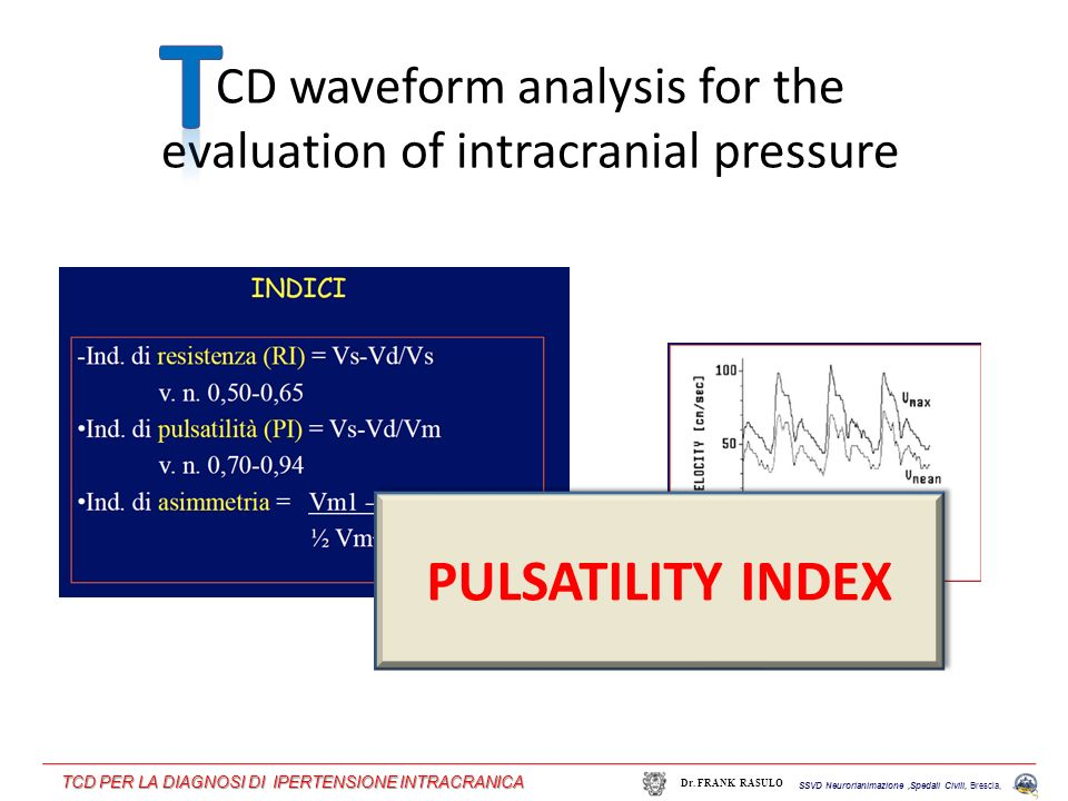 CD waveform analysis for the evaluation of intracranial pressure PULSATILITY INDEX SSVD Neurorianimazione,Spedali Civili, Brescia, Dr. FRANK RASULO TC