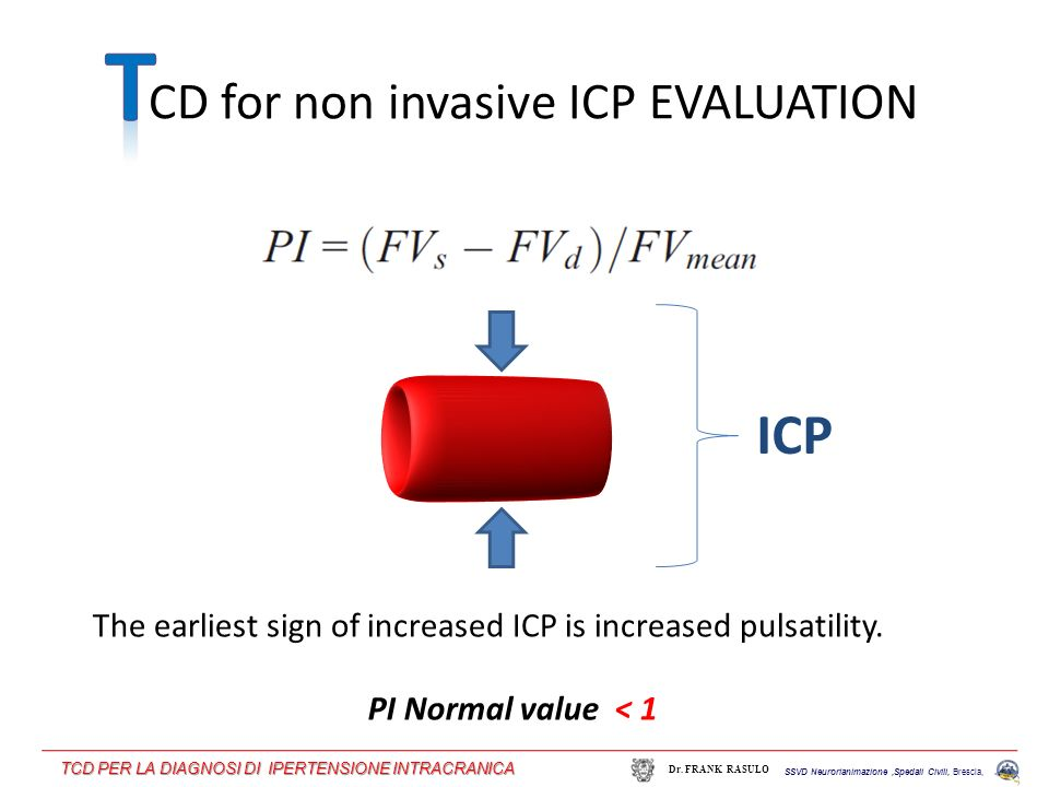The earliest sign of increased ICP is increased pulsatility. ICP CD for non invasive ICP EVALUATION PI Normal value < 1 SSVD Neurorianimazione,Spedali