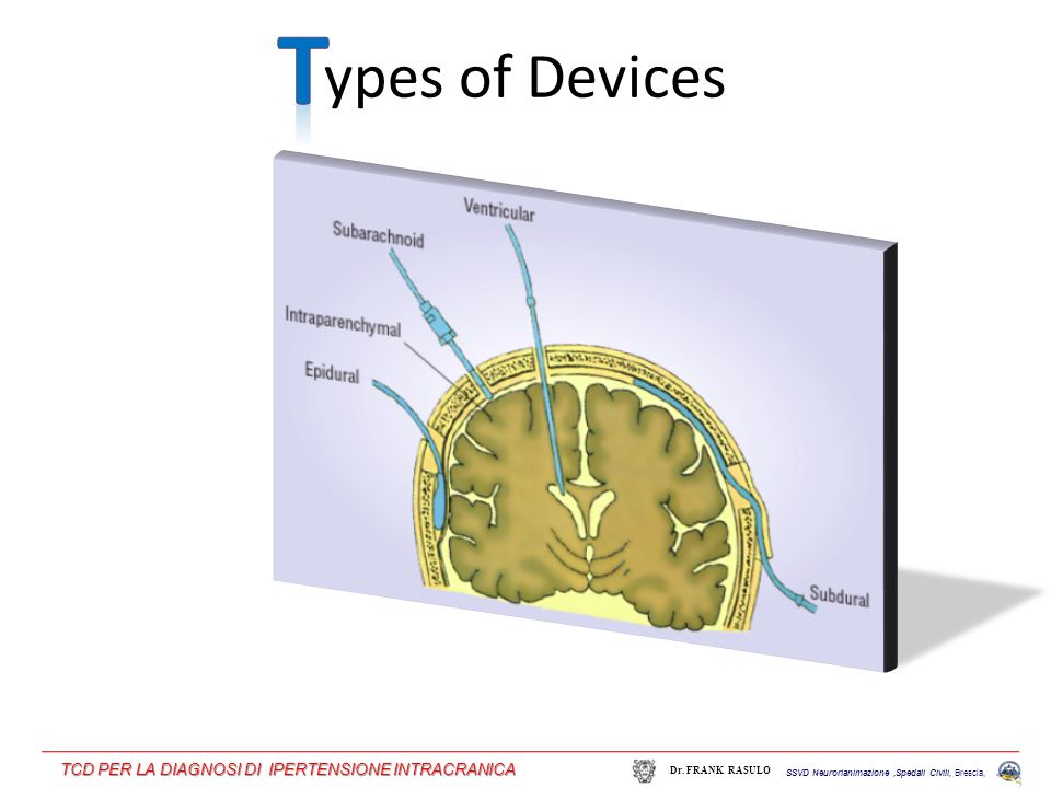 ypes of Devices SSVD Neurorianimazione,Spedali Civili, Brescia, Dr. FRANK RASULO TCD PER LA DIAGNOSI DI IPERTENSIONE INTRACRANICA