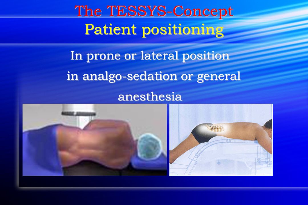 The TESSYS-Concept Patient positioning In prone or lateral position in analgo-sedation or general in analgo-sedation or generalanesthesia