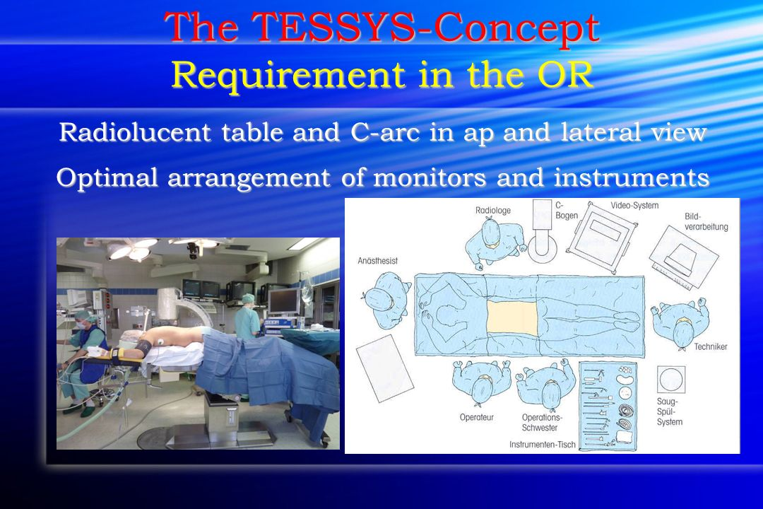 The TESSYS-Concept Requirement in the OR Radiolucent table and C-arc in ap and lateral view Optimal arrangement of monitors and instruments