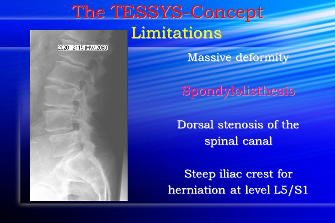 The TESSYS-Concept Limitations Massive deformity Spondylolisthesis Dorsal stenosis of the spinal canal Steep iliac crest for herniation at level L5/S1