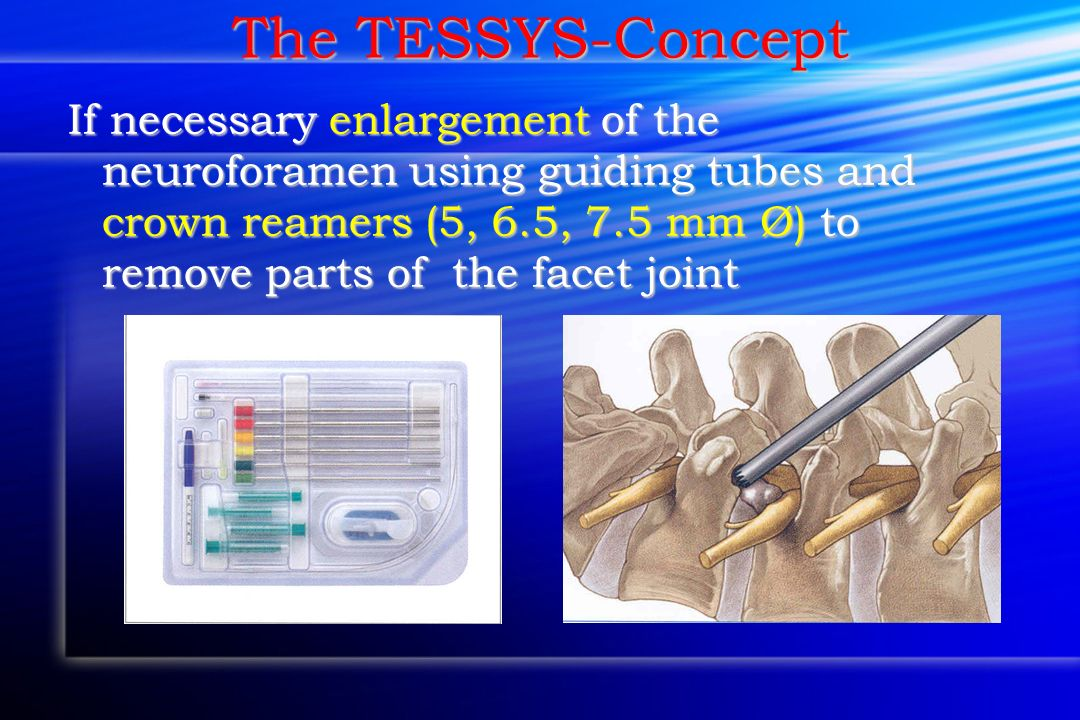 The TESSYS-Concept If necessary enlargement of the neuroforamen using guiding tubes and crown reamers (5, 6.5, 7.5 mm Ø) to remove parts of the facet