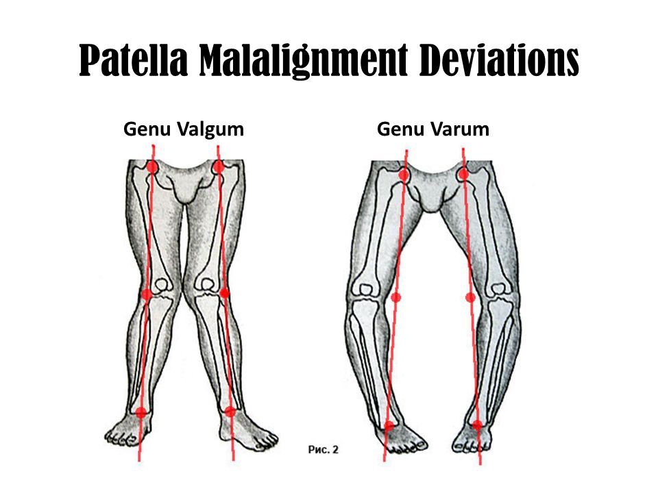 Patellar Region Of The Body