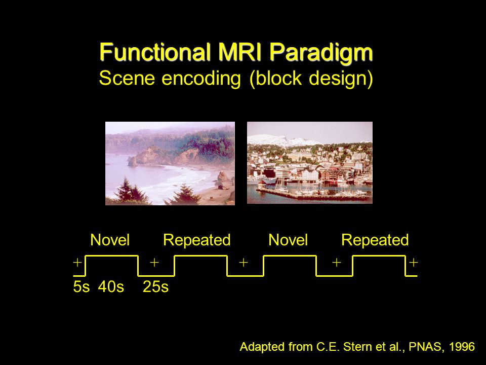 Functional MRI Paradigm Functional MRI Paradigm Scene encoding (block design) Novel Repeated Adapted from C.E.