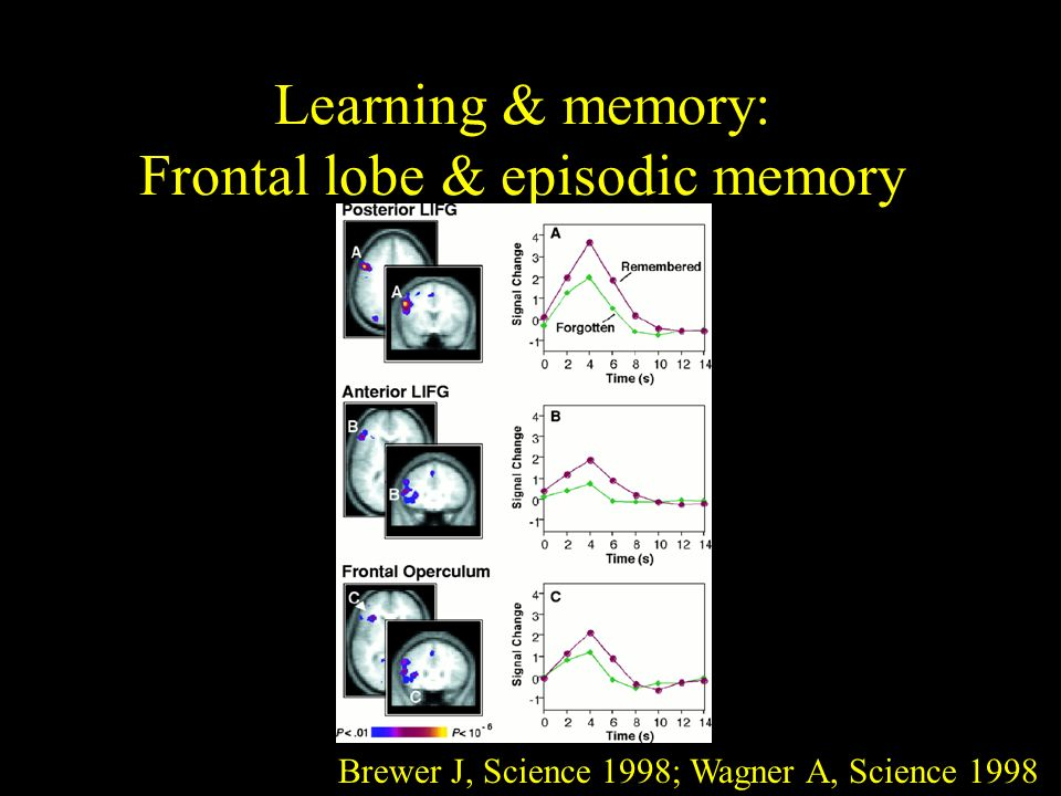Learning & memory: Frontal lobe & episodic memory Brewer J, Science 1998; Wagner A, Science 1998