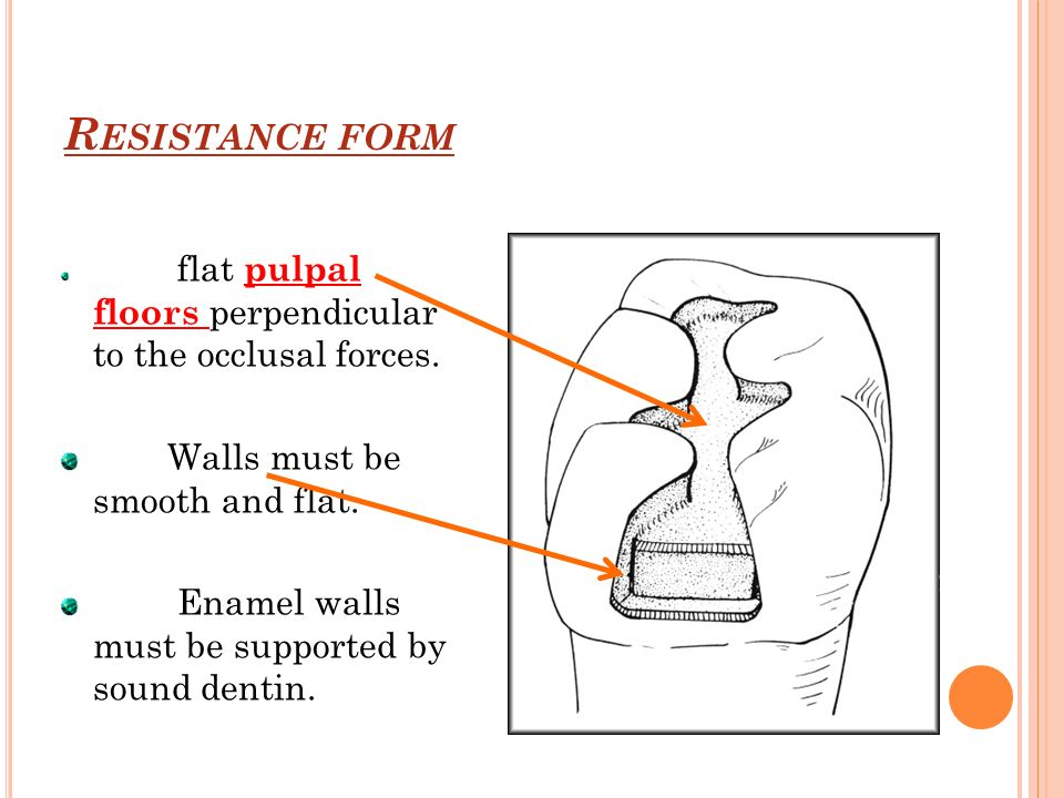 R ESISTANCE FORM flat pulpal floors perpendicular to the occlusal forces.