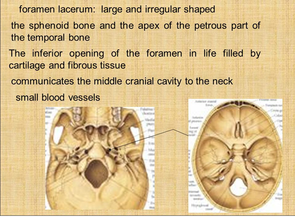 the body one bone the greater wing two bones the lesser wing two, Sphenoid