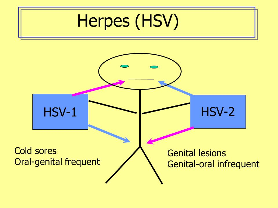 Genital Herpes (HSV) Transmission: skin to skin Symptoms: Prodrome--tingling in legs, buttocks or groin Lesion--itching, blister at infection site; Recurrences vary in frequency and severity Time to onset: 2-20 days Pregnancy: 5% transmission when lesions present Diagnosis: culture, antibody test Treatment: symptom relief; antivirals effective