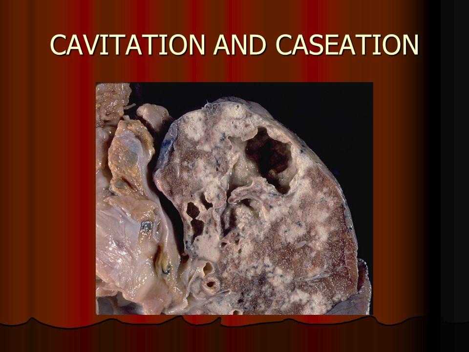 CAVITATION AND CASEATION