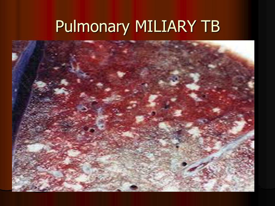 Pulmonary MILIARY TB