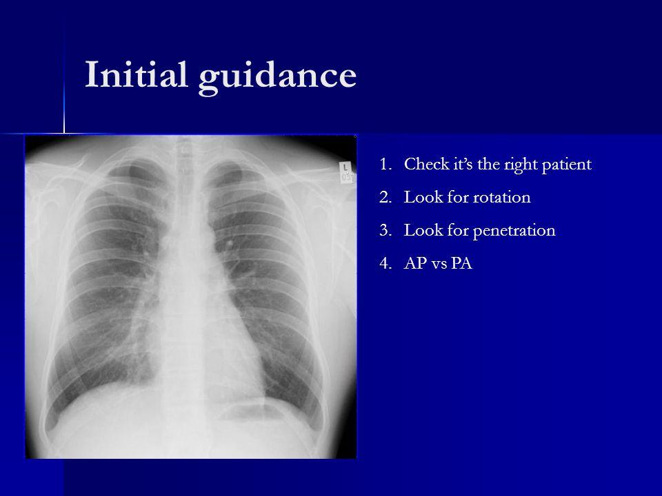 x ray penetration