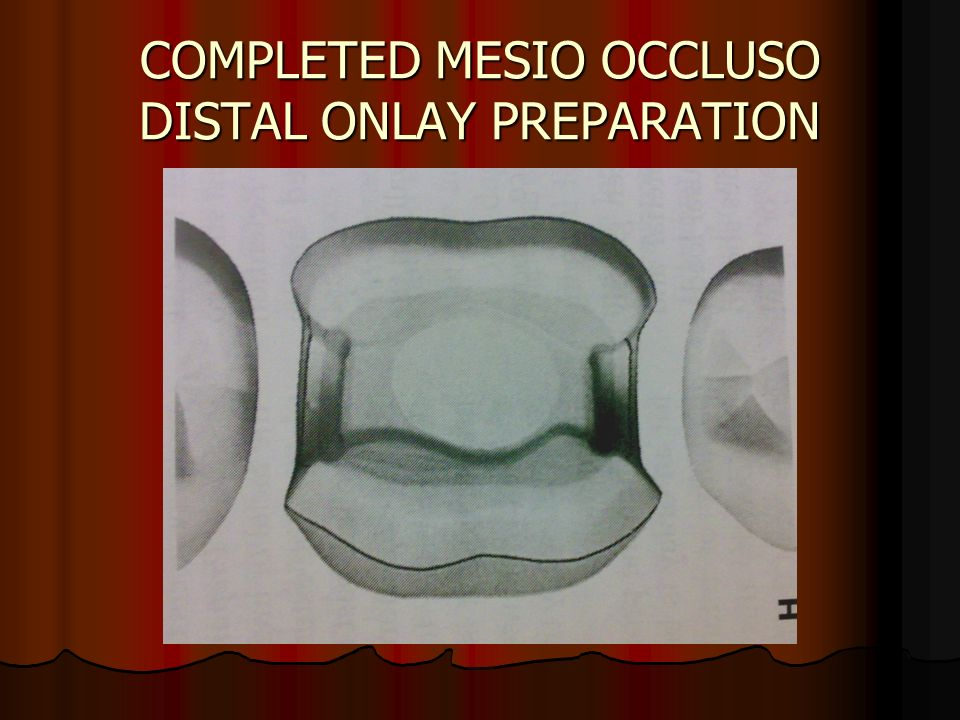 COMPLETED MESIO OCCLUSO DISTAL ONLAY PREPARATION