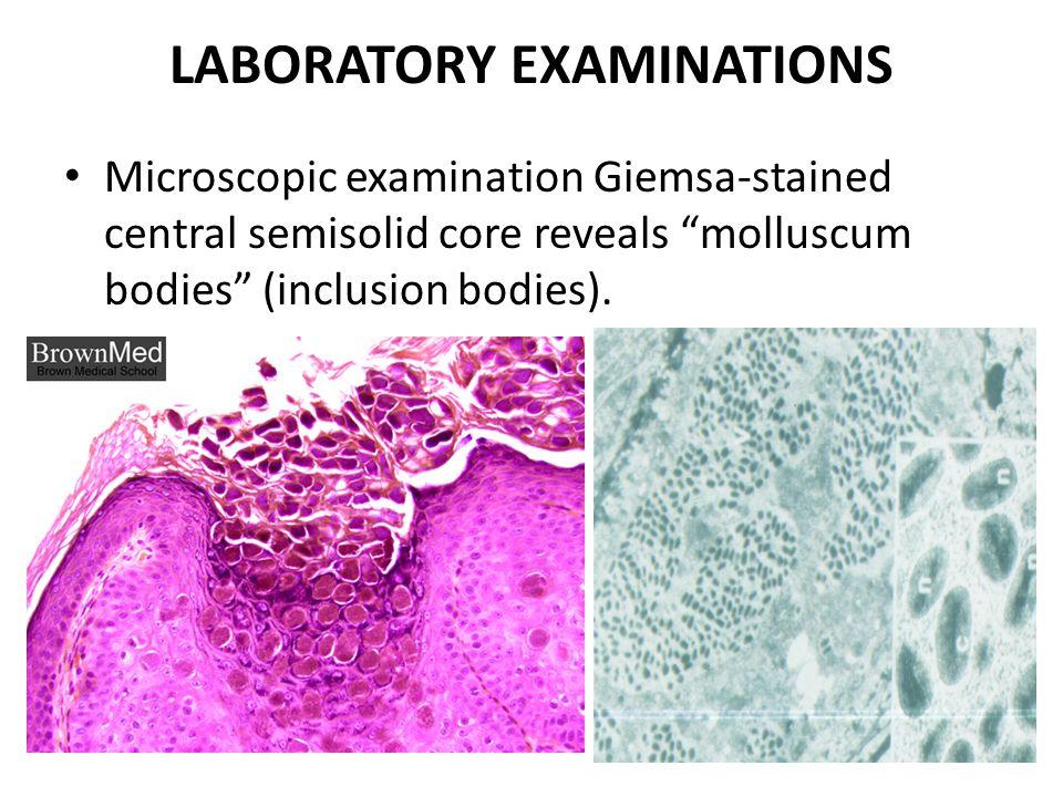 LABORATORY EXAMINATIONS Microscopic examination Giemsa-stained central semisolid core reveals molluscum bodies (inclusion bodies).