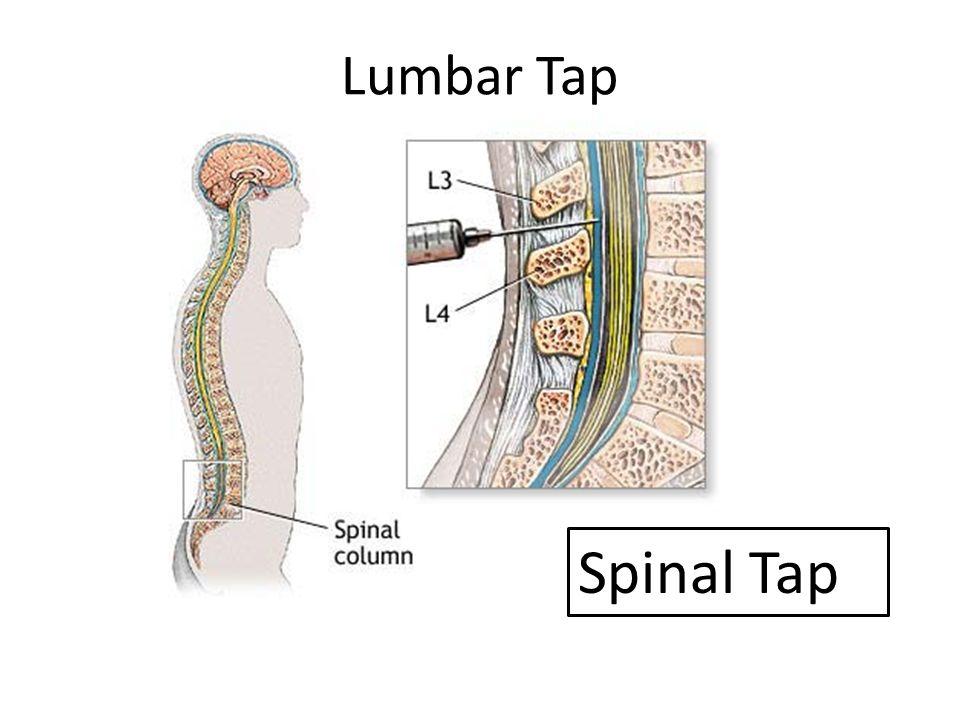 Niedlich Spinal Tap Anatomy Bilder - Menschliche Anatomie Bilder ...
