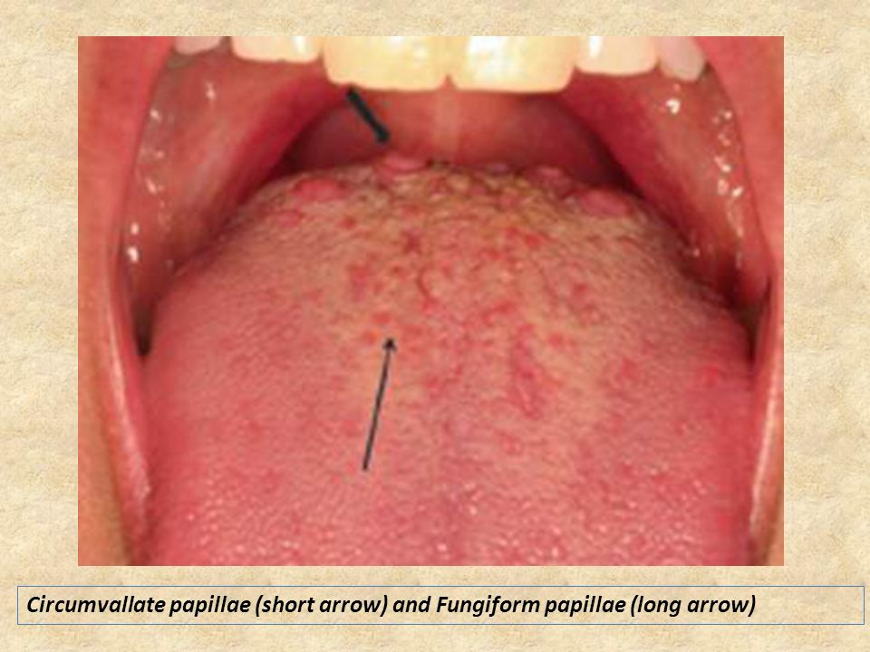 Circumvallate Papillae On Side Of Tongue 60436 | MOVIEWEB